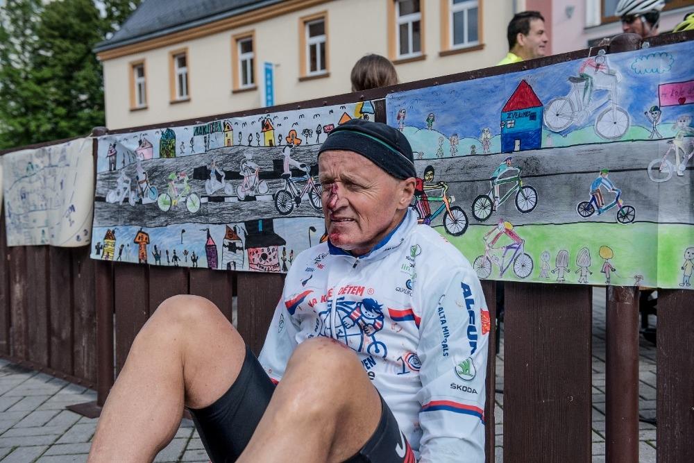 Josef Zimovčák potlučený po jednom z pádů během desátého ročníku projektu Na kole dětem.