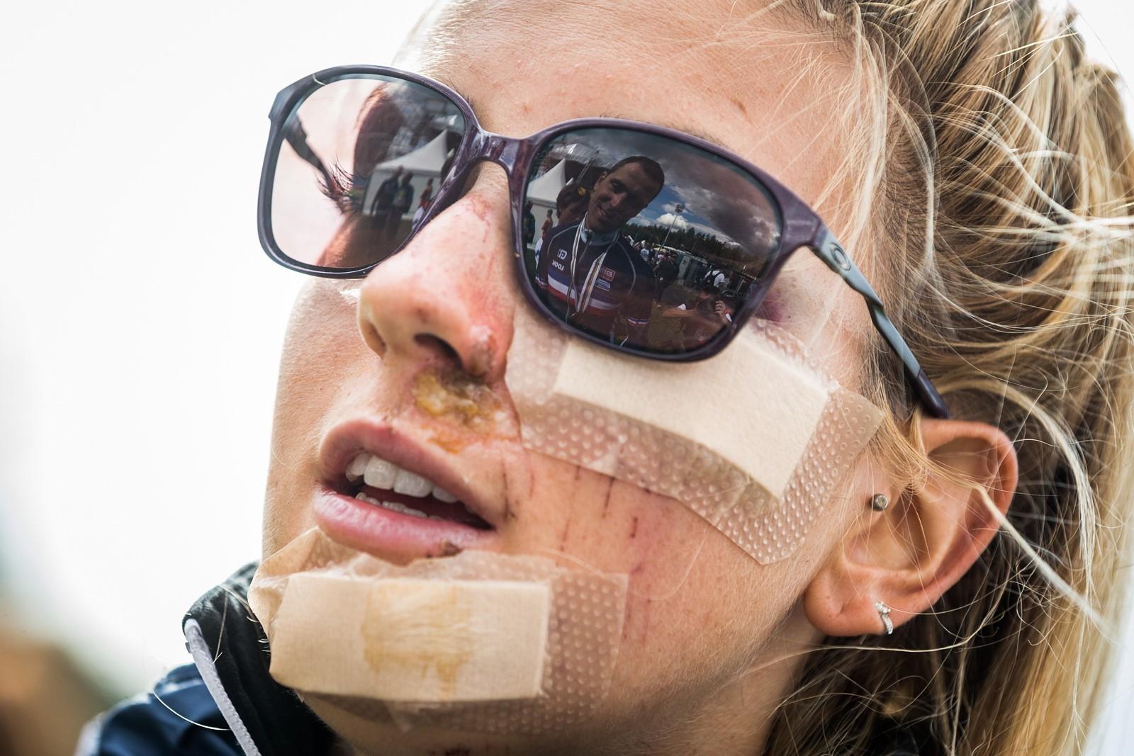 Pauline Ferrand-Prévotová s mnohočetnými odřeninami obličeje po pádu na okruhu v Novém Městě na Moravě. Foto: Michal Červený