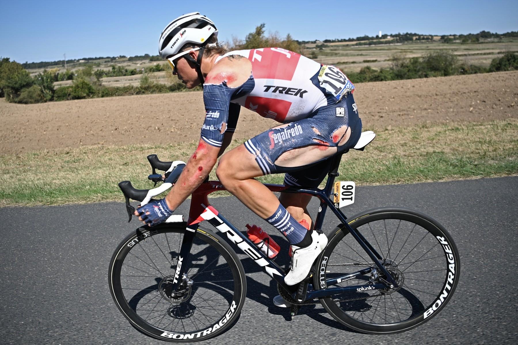 Toms Skujinš spadl drsně v desáté etapě Tour de France. Přesto se dostal do cíle a v závodě pokračuje. Foto: profimedia